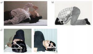 嗅覚障害に対するステロイド(リンデロン®︎)点鼻法