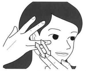 顔面神経麻痺に対するリハビリテーション(発症後早期)